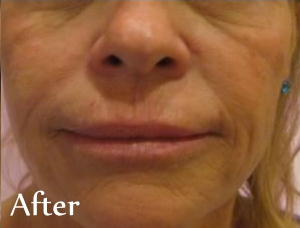 Before & After – Natural Results Medical Aesthetics